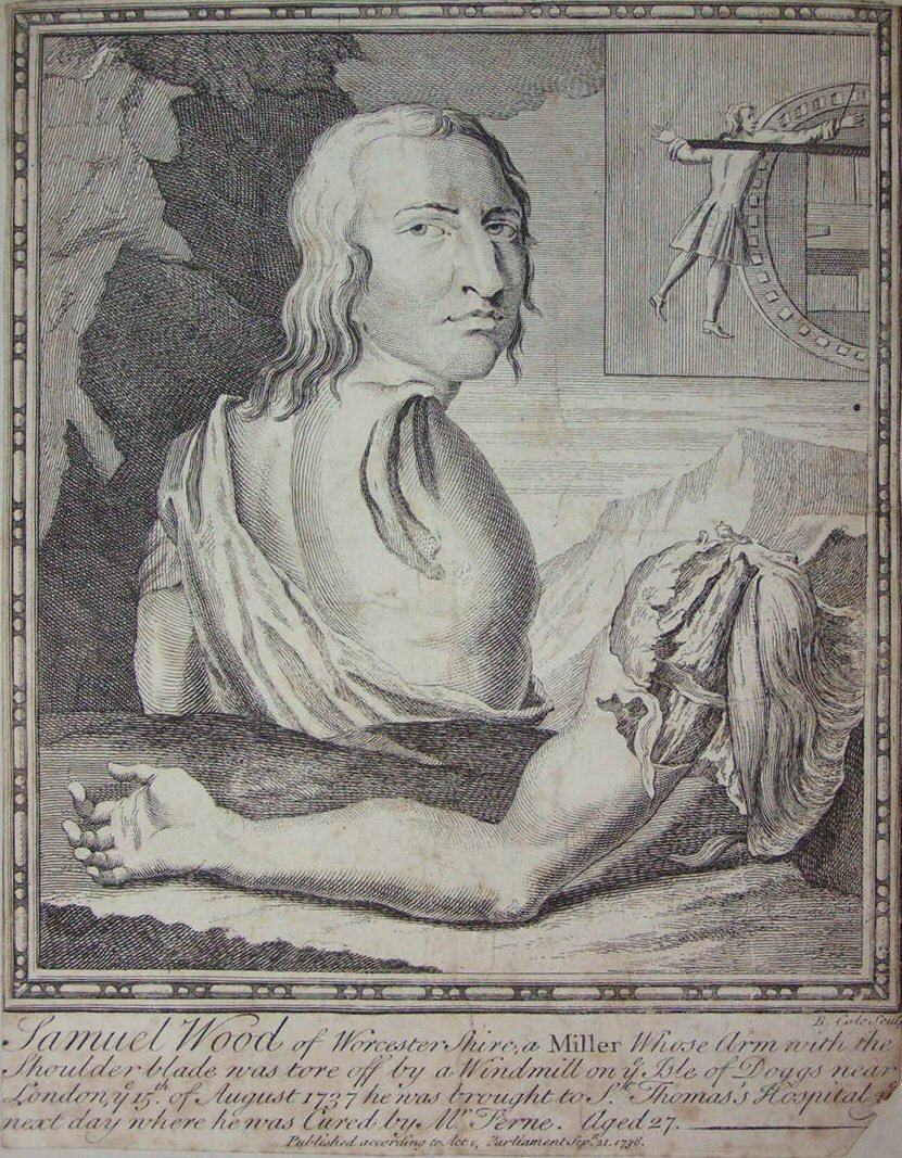 Print - Samuel Wood of Worcestershire, a Miller, whose arm with the shoulder blade was tore off by a Windmill on the Isle of Doggs  - Cole